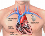 Pembroke Pines pacemaker