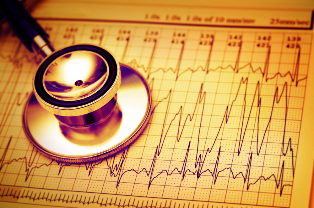 Heart Rhythm Specialist Slider